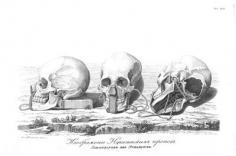 Forme du crâne des habitants de Nuku Hiva (1814)